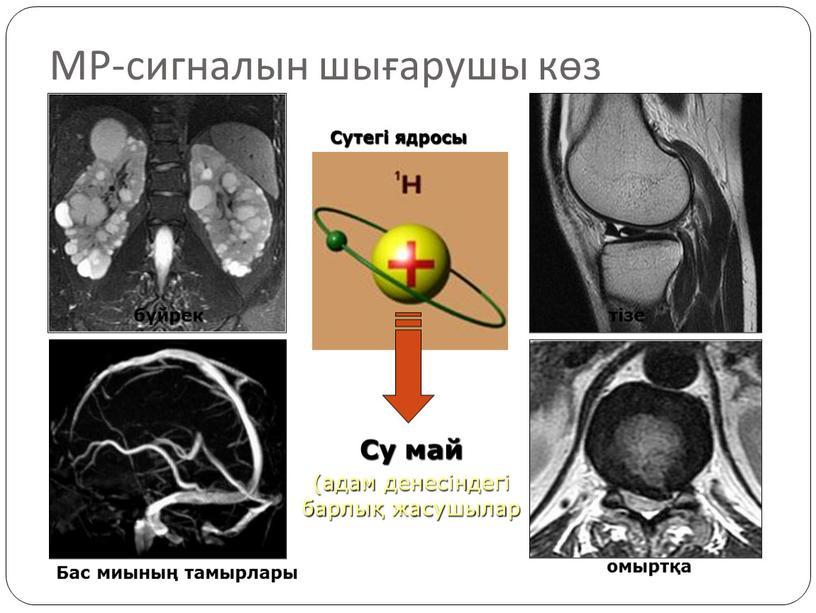 МР-сигналын шығарушы көз Су май (адам денесіндегі барлық жасушылар