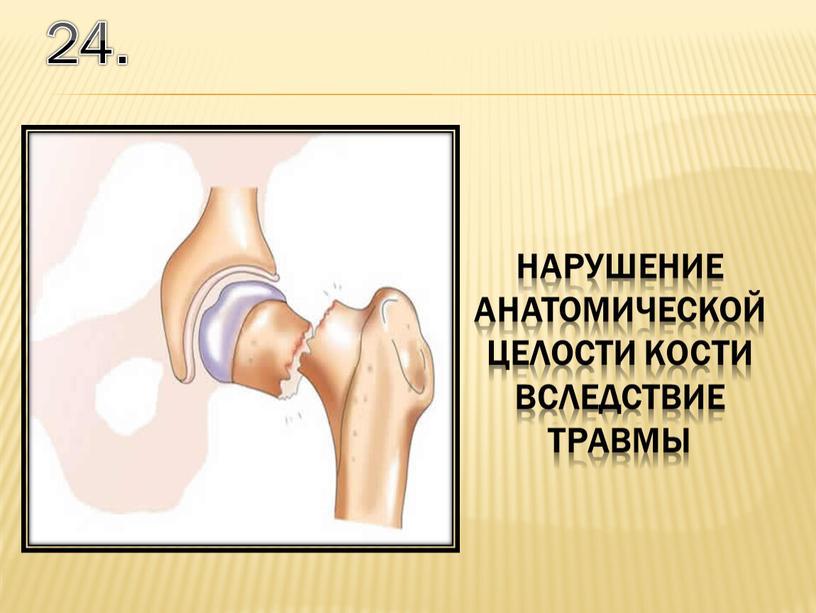24. нарушение анатомической целости кости вследствие травмы
