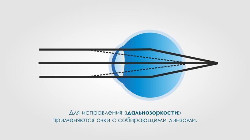 Для исправления « дальнозоркости » применяются очки с собирающими линзами