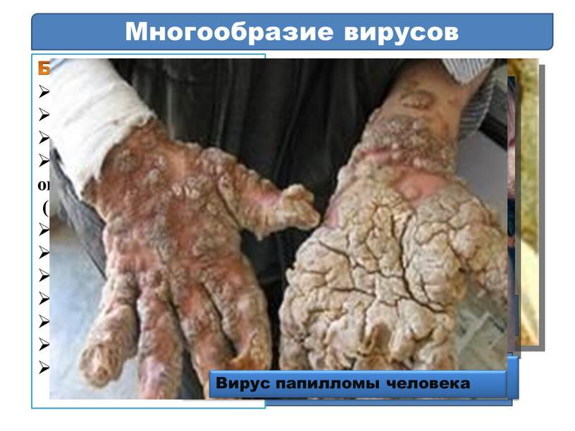 Многообразие вирусов Болезни человека: свинка грипп оспа некоторые онкологические (опухолевые) болезни желтая лихорадка бешенство полиомиелит энцефалит