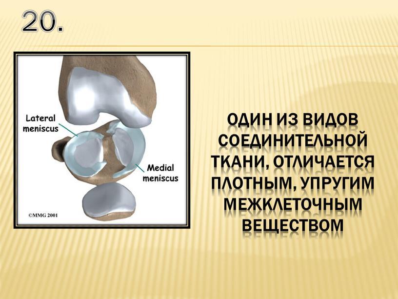 20. один из видов соединительной ткани, отличается плотным, упругим межклеточным веществом