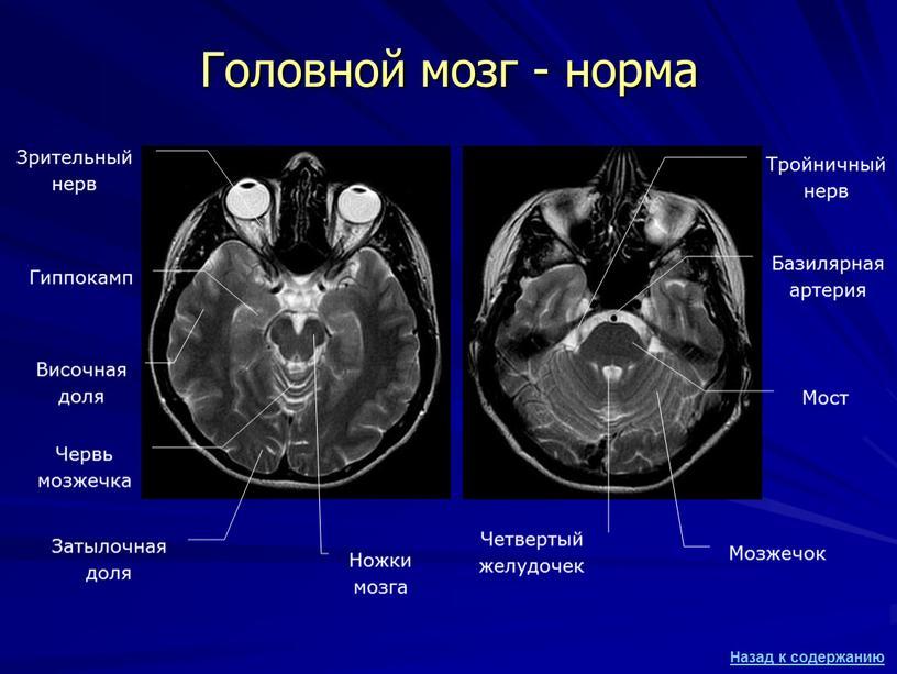Головной мозг - норма Затылочная доля