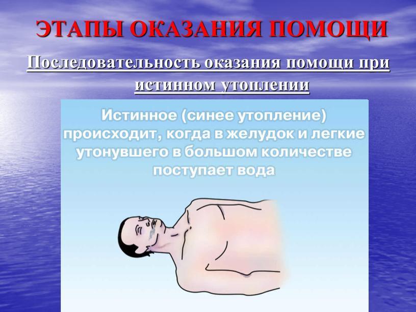 ЭТАПЫ ОКАЗАНИЯ ПОМОЩИ Последовательность оказания помощи при истинном утоплении