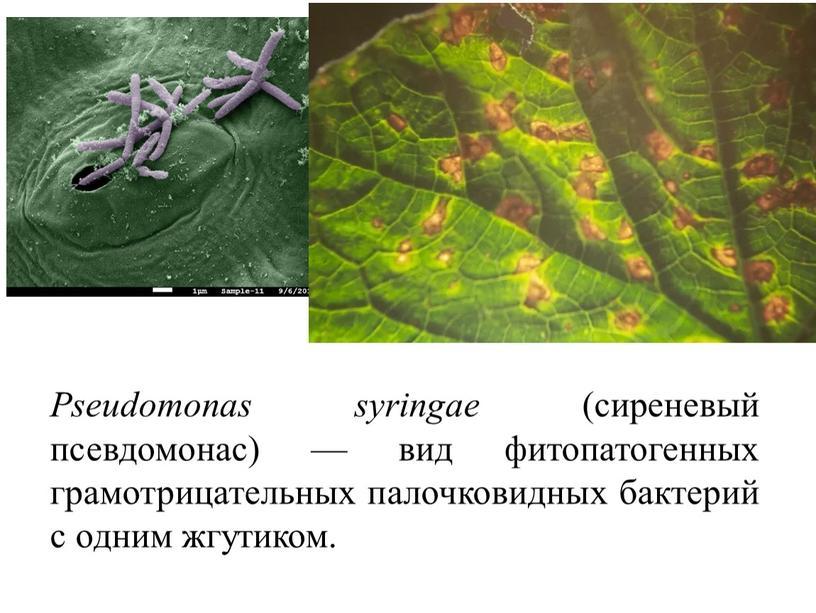 Pseudomonas syringae (сиреневый псевдомонас) — вид фитопатогенных грамотрицательных палочковидных бактерий с одним жгутиком