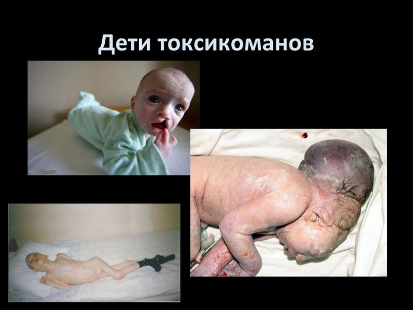 Дети токсикоманов