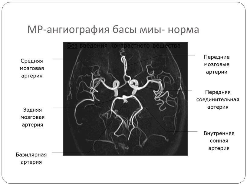 МР-ангиография басы миы- норма